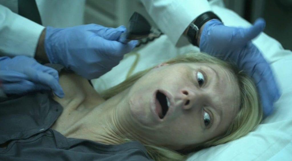 yatakta yatan ağzını açmış bir kadın. Başında duran mavi eldivenli eller